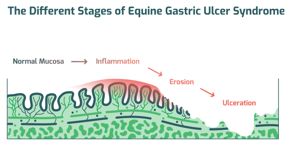stages of ulcer syndrome